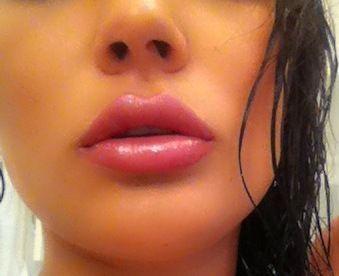 Liepenaufspritzung - volle Lippen