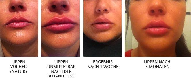 Prozess zu vollen Lippen - lippenaufspritzung